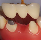 Periodontal Dental Treatment
