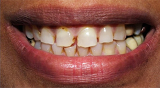 Cosmetic Periodontal surgery, Bleedign Gums, gum treatment, replace teeth